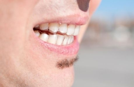 invisible aligners worn without getting noticed