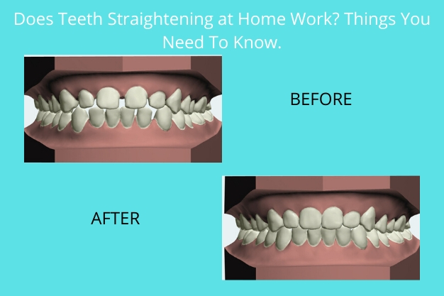 Does teeth straightening at home work