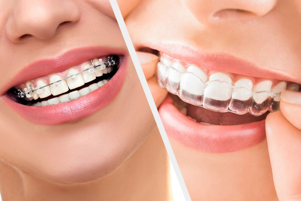 Clear-Aligners-Better-Than-Ceramic-Braces