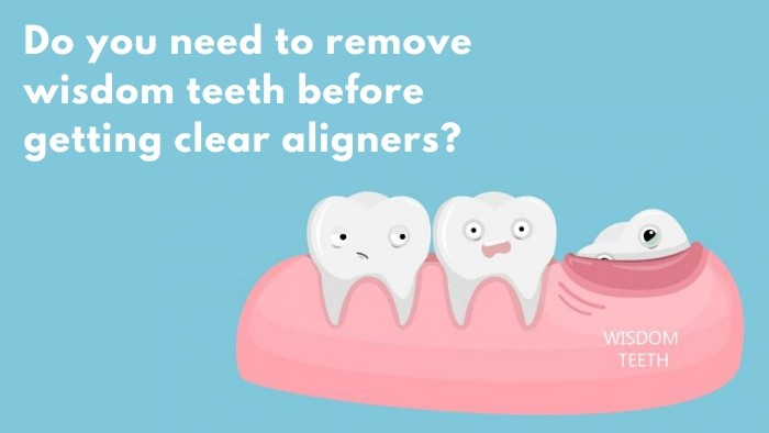 Clear Aligners without having Wisdom Teeth removed