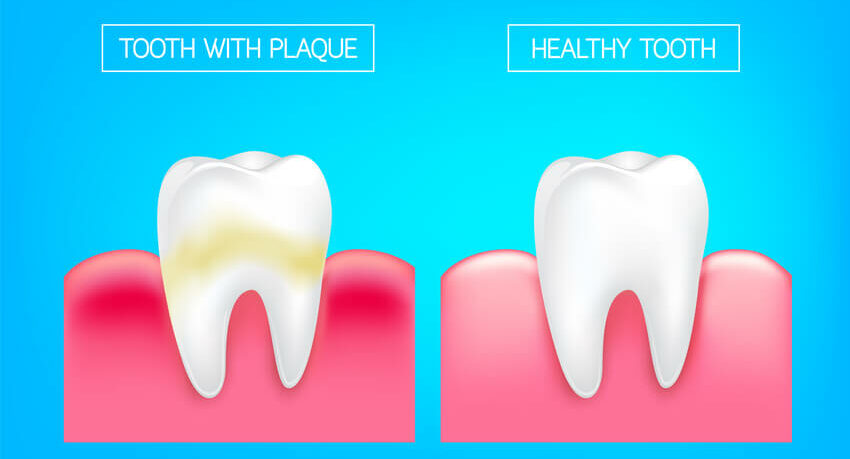 What Is Dental Plaque And How Can I Get Rid Of It