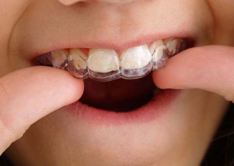 Does Teeth Straightening at Home Work - What to Know